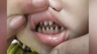 孩子嘴裡長出尖銳「鯊魚齒」父母覺得超霸氣 醫生:害了他
