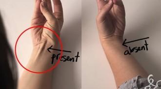 你或你身邊的人手腕有「這條筋」嗎?原來它竟是上天賜的禮物